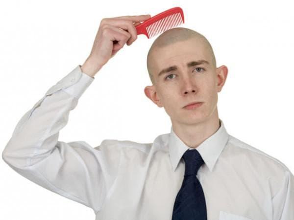 выпадение волос у мужчин в раннем возрасте